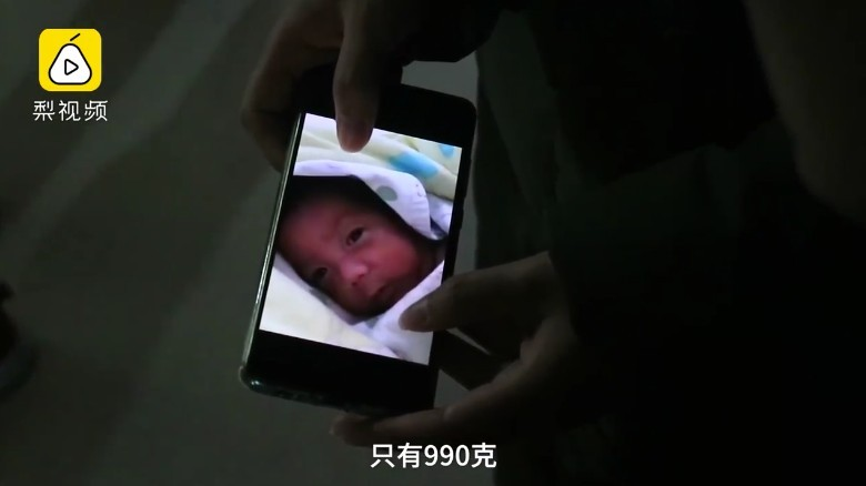 早產:出生時體重特別低,只有990克